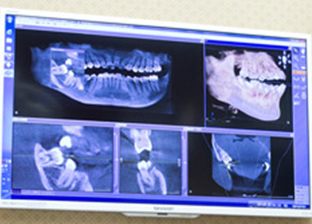 手術前の骨診断