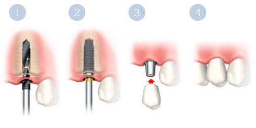 フラップレスインプラント手術