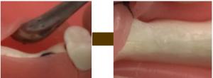 歯茎に小さい穴をあける