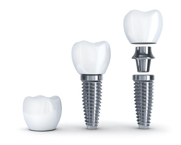 人工歯とアバットメント