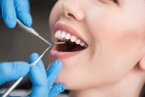 歯科治療に使用される金属とは