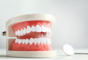 総入れ歯のメリットとデメリット