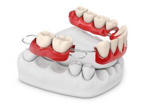 総入れ歯の不便さを解消する治療法