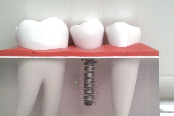 奥歯のインプラント治療