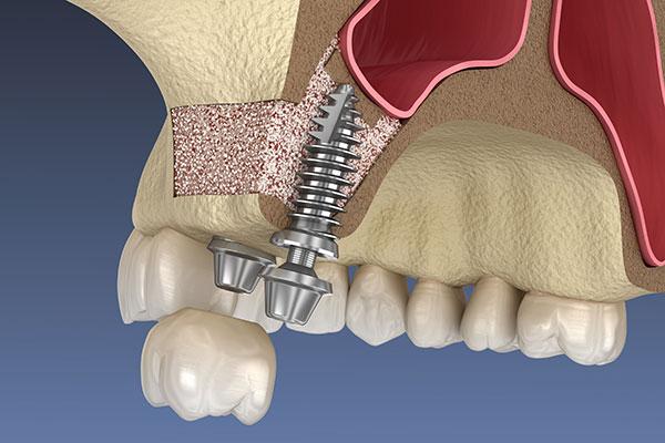 上顎の奥歯のインプラントができないと言われるケース