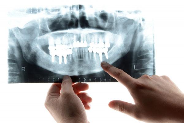 下顎の奥歯のインプラントができないと言われるケース